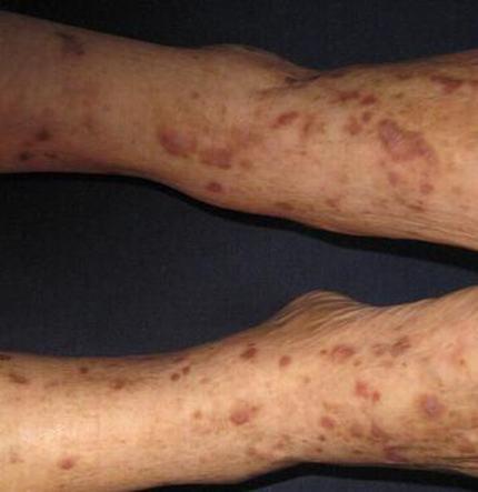 扁平苔藓是什么症状