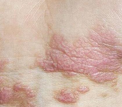 扁平苔藓的症状类型有哪些