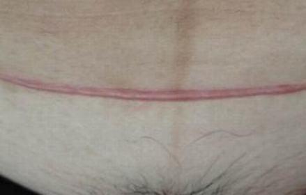 修复手术疤痕 我终于可以快乐生活