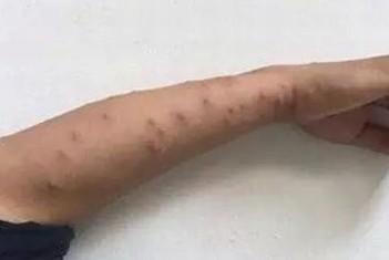 冬季老人怎样的预防皮肤瘙痒