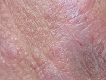 发生脂溢性皮炎的病因有什么