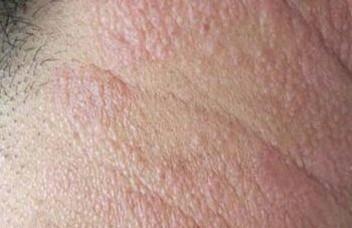 接触性皮炎形成的原因