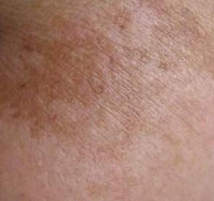 黄褐斑的诱发条件有哪些