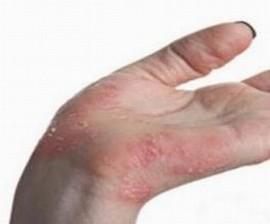 手足癣有哪些护理原则
