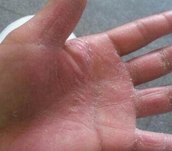 治疗手足癣的特效药