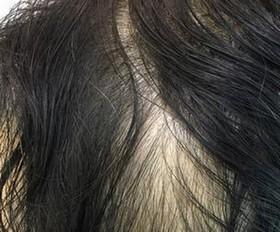 女性脱发患者应多吃的食物