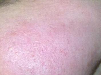 皮肤过敏会起水泡吗