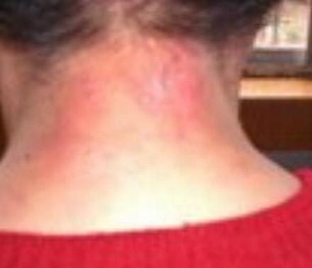 秋冬皮肤瘙痒防治