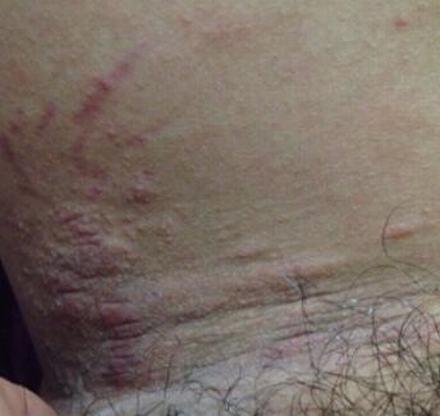 怎样的预防皮肤瘙痒的发生