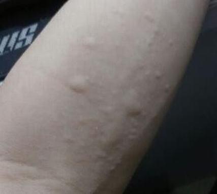 炎炎老人夏日皮肤瘙痒