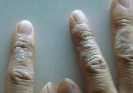 湿疹的症状你明了吗