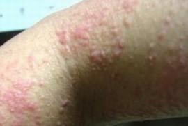 湿疹的环境变应原有哪些呢