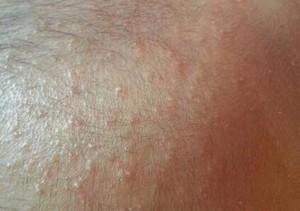 肛门湿疹的联合中西医诊疗方法