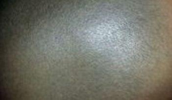 头癣患者会发现哪些症状