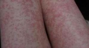 湿疹患者应该吃啥好呢