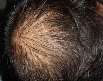 脱发日常预防保健有哪些