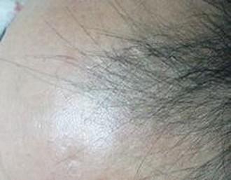 脱发患者的自白至发友的一封信