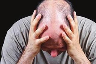 脱发患者如何调节自己的心理