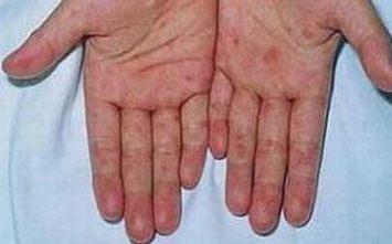 怎么发现早期梅毒