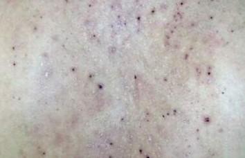 染发致使接触性皮炎