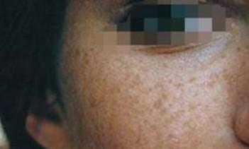 如何去掉色斑?几种治疗色斑的小措施