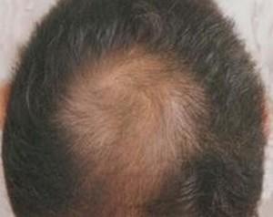 怎么做避免患上脱发