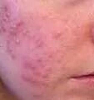 鼻子长痘痘的因素是啥