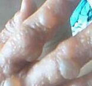 得了汗疱疹应该注意哪些