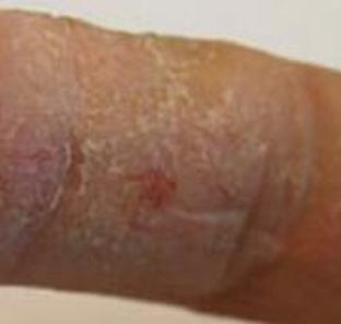 汗疱疹导致的危害是有哪些