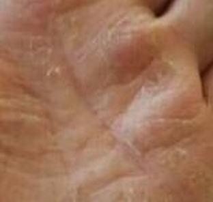 汗疱疹的导致原因