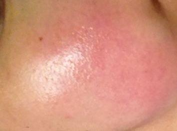 如何治疗皮肤过敏呢