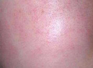 皮肤过敏止痒的方法有哪些