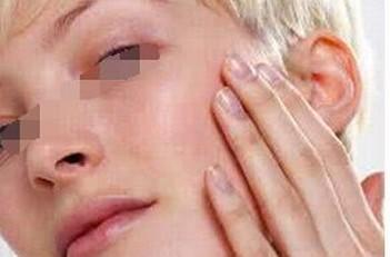 皮肤异痒症的预防