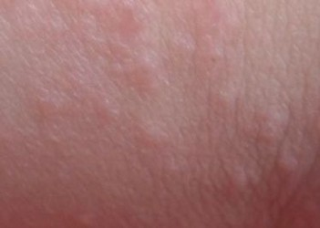 皮肤异痒症的病因有什么
