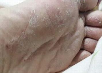 脚气怎么样有用预防
