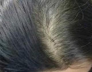 什么因素致使脱发