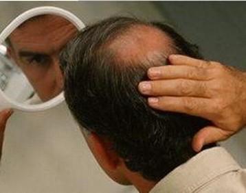 如何判断脂溢性脱发