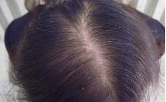 压力会致使脱发吗