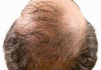 诊断脱发要做什么检查