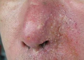 鼻子发红是酒糟鼻导致的吗