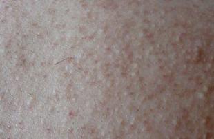 治疗毛周角化症的措施