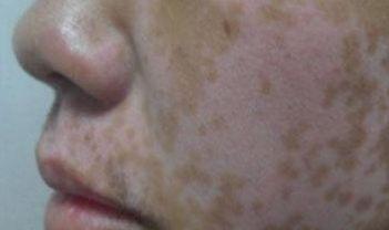 白癜风病的治疗概述
