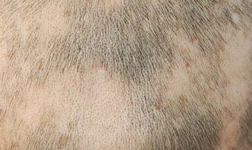斑秃常常与哪些疾病比较