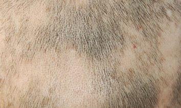 斑秃与哪些疾病辨别
