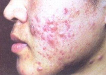 痤疮疤痕的预防有哪些_痤疮