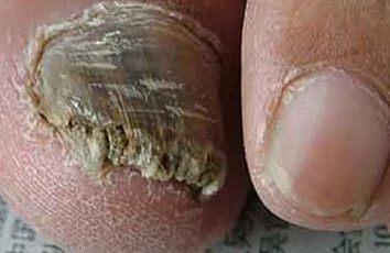 灰指甲的病发症有哪些