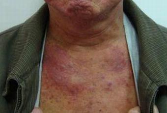 皮肌炎的早期的体现体现有哪些