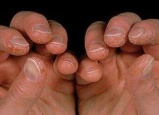 皮肌炎病对体内的症状表现