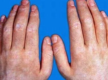 皮肌炎都会有什么危害