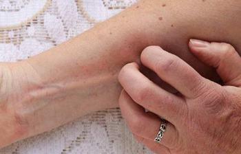 过敏性皮炎该怎样护理
